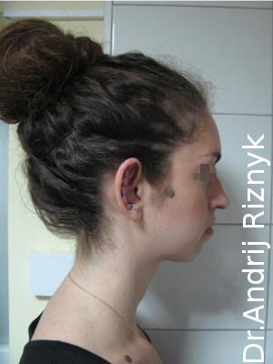 пластика вуха ціна