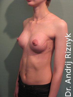 пластика грудей імплантами