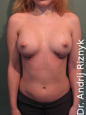 корекция груди. увеличение груди