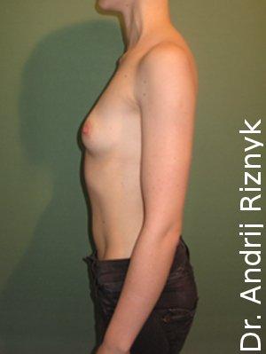 збільшення грудей імплантатами