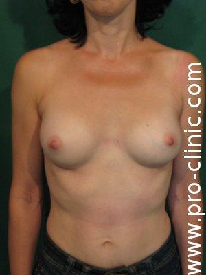збільшити груди. Підтяжка грудей