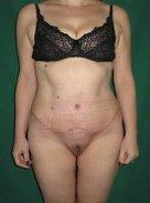 видалення жирового фартуха живота