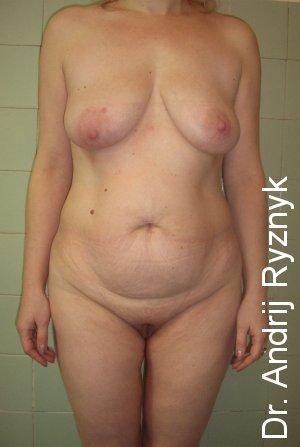 абдомінопластика у жінок