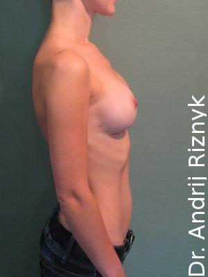 Збільшити груди. Увеличить грудь