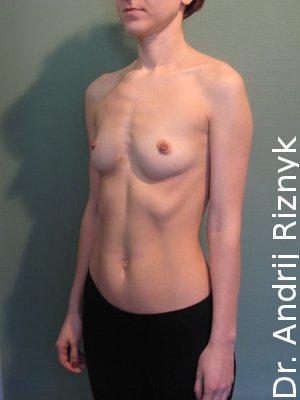 Увеличить грудь. Збільшити груди