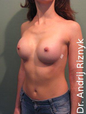 Маммопластика. Збільшеня грудей
