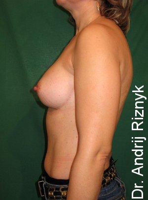 увеличение груди.пластика груди