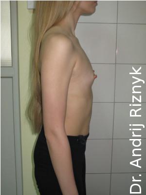 Підтяжка грудей. мамопластика