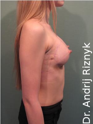 Маммопластика и увеличение груди