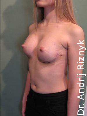 Збільшення грудей. мамопластика