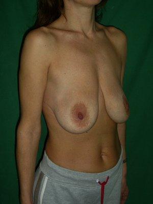 Пластика груди. Увеличение груди