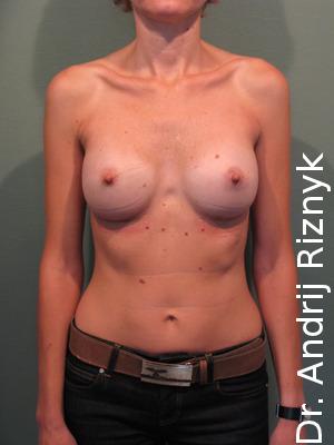 збільшення грудей імплантами