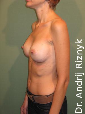 Збільшення грудей. Пластика грудей