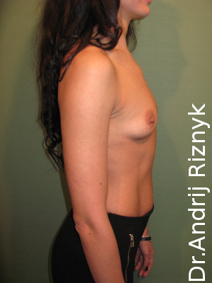 Подтяжка груди. Маммопластика
