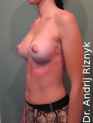 Збільшення грудей імплантатами.