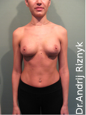 Мамопластика. Пластика груди