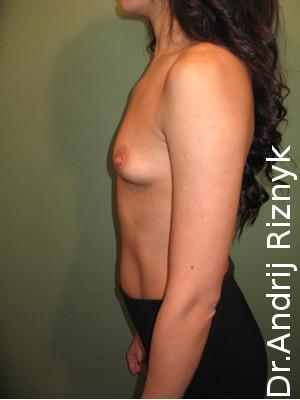 Підтягути груди. Подтянуть грудь