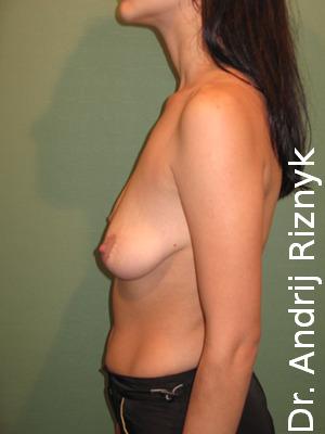 Пластика грудей. Збільшення грудей.