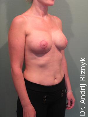 грудні протези для збільшення