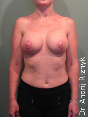 увеличение груди протезами