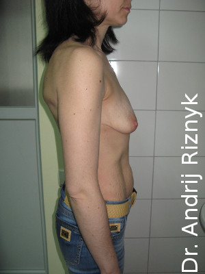 мамопластика імплантатами