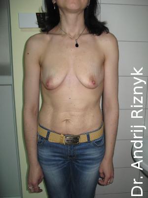 грудной имплант и маммопластика