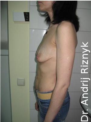 мамопластика грудні імпланти