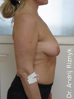 имплантаты в мамопластике