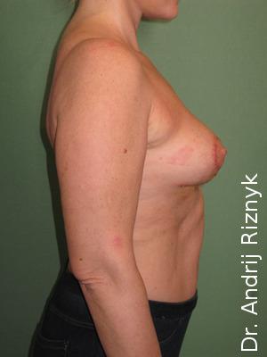 подтяжка груди имплантатами