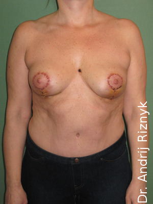 підтяжка грудей імплантатами