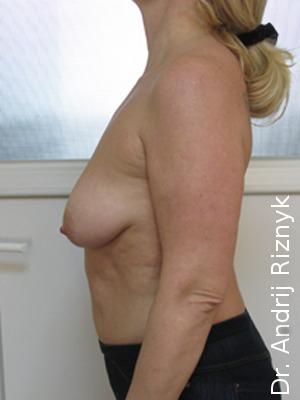 подтянуть грудь имплантами