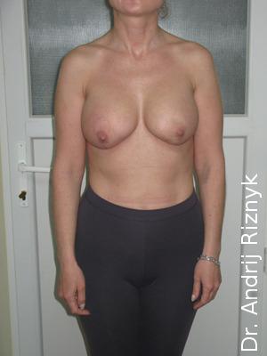 пластика грудей імплантатами