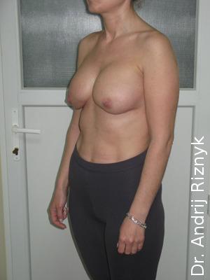 протезування грудей імплантами