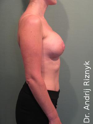 грудніе протезы для увеличения