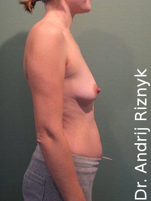 Подляжка груди имплантатами