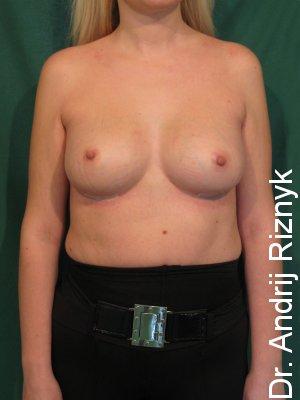 пластика грудей имплантатами