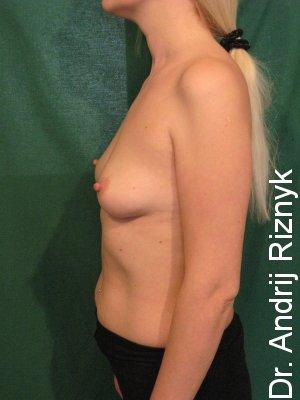 мамопластика збільшення грудей