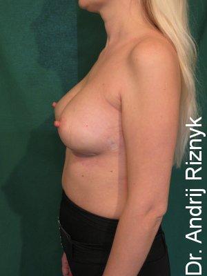 Увеличить грудь. Маммопластика