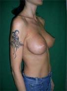 Корекция груди. Пластика груди