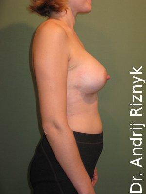 Маммопластика. Уваличение груди