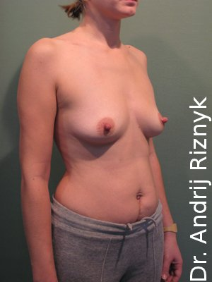 Увеличение груди. Маммопластика