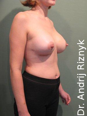 Маммопластика. Подтяжка груди.