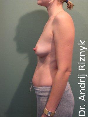 Увеличение груди. Пластика груди.