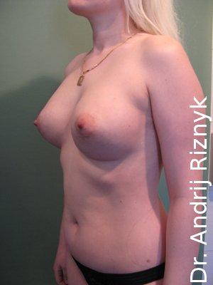 Мамопластика грудей. Збільшення грудей