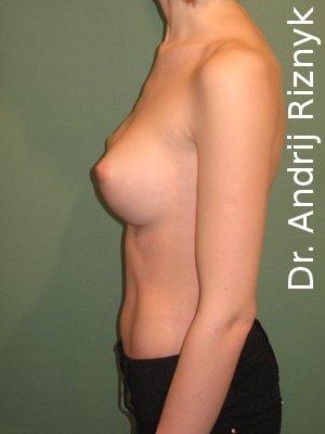 операції зі збільшення грудей