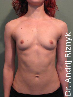 імпланти для збільшення грудей