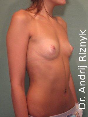 Маммопластика. увеличение груди