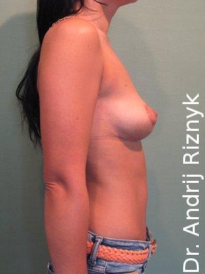 имплантати и пластика груди