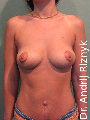 пластика жіногих грудей