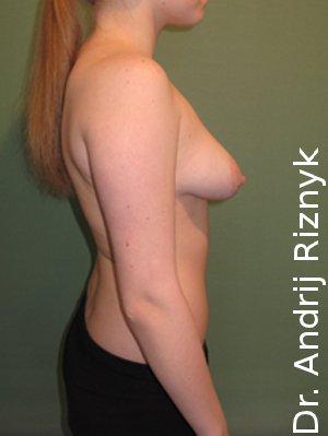 Пластична хірургія мамопластика